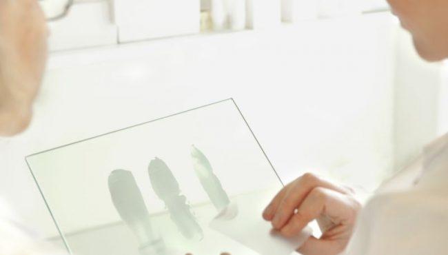 Moberg Pharma Framtidssakrar Tillvaxt Med SAP S 4HANA Och Implema
